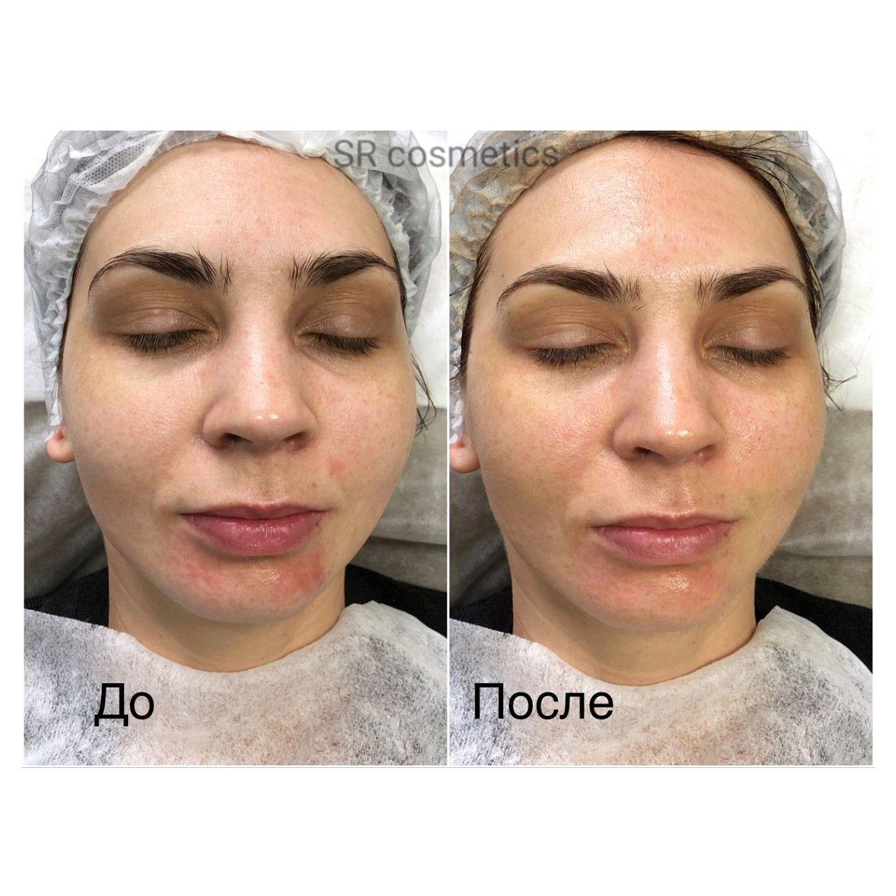Старший косметолог - Кудлай Алёна